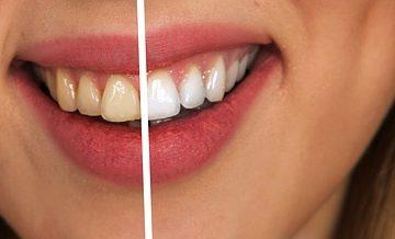 blanchiment des dents chez le dentiste